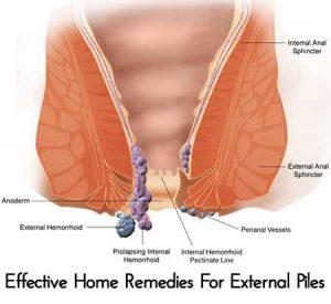 Natural Hemorrhoids Solution Pack
